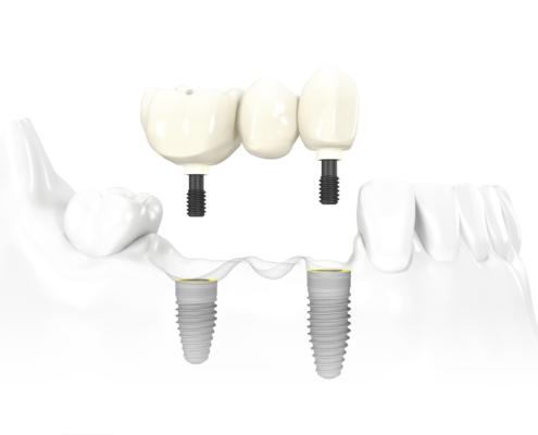 3 Unit Implant Bridge Nobel replace