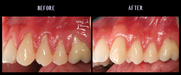 Soft Tissue Craft For Root Coverage