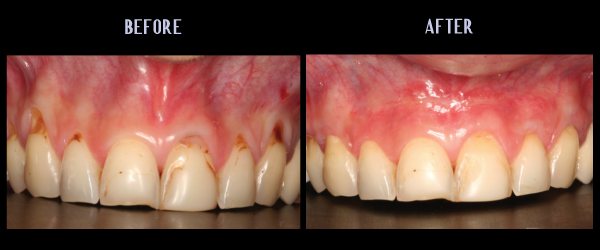 Soft Tissue Graft For Root Coverage