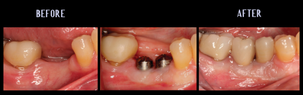 Implant Placement And Increasing Attached Gingiva
