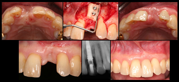 Bone Reconstruction and Implant Placement